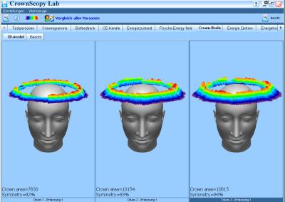 Kirlian Brain