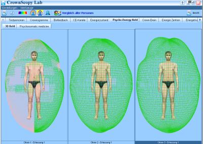 Kirlian Energiezustand-3D